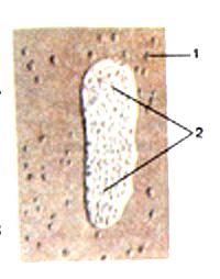 Лимфоидные узелки и лимфоидная бляшка в стенке
