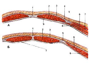 Влагалища впрямь прямых мышц живота
